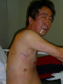 看護婦さんに撮ってもらった手術3日後の写真。 この写真を見た弊社女子社員は、拳銃で撃たれたヤクザのようだ、と評した(苦笑)